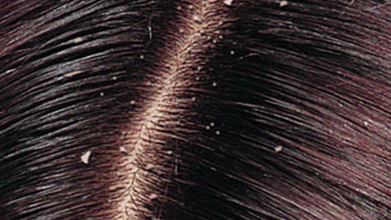طرق إزالة القشرة من الشعر