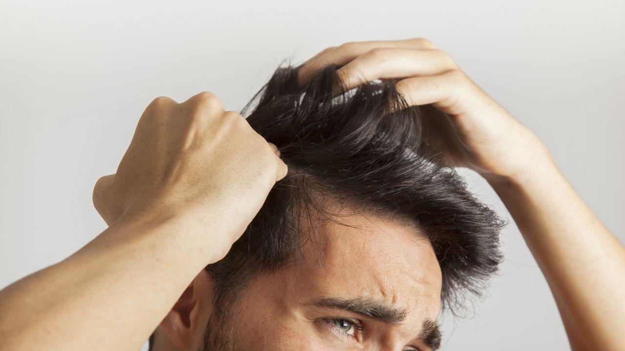 ما علاج حكة الرأس