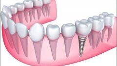 ما هي زراعة الاسنان