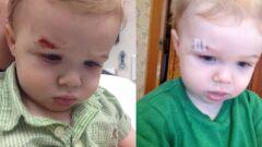سقوط الطفل على رأسه