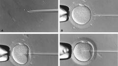 طريقة حساب الحمل بعد الحقن المجهري