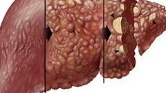 ما هي علامات تليف الكبد