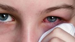علاج رمد العيون
