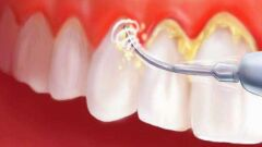 إزالة الجير من الأسنان بطرق طبيعية