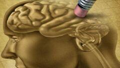 أعراض ضمور المخ