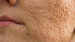 علاج آثار الحبوب في الوجه