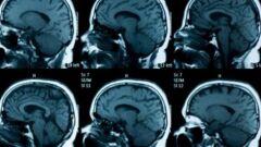 علاج ضمور المخ البسيط عند الأطفال