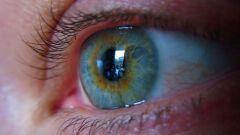 علاج ضغط العين المرتفع