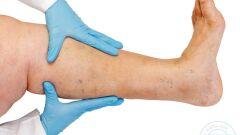 علاج سمنة الساقين