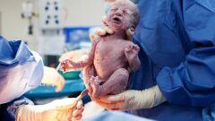 مراحل الطلق والولادة