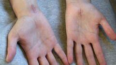 كيفية إزالة علامات الجروح